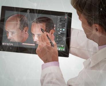 Robotik Saç Cerrahisi Deneyimi