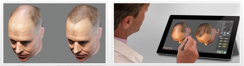 Robotik Saç Cerrahisi Öncesi Saç Simülasyonu